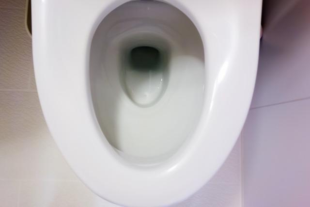 トイレ 黒ずみ